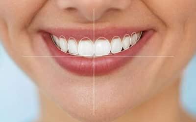 El diseño de sonrisa que buscas está en nuestra clínica dental.